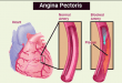 Drug for Treatment of Angina Pectoris Selection