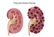 How To Treat Polycystic Kidney DiseaseHow To Treat Polycystic Kidney Disease