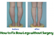 How to Fix Bow Legs without Surgery